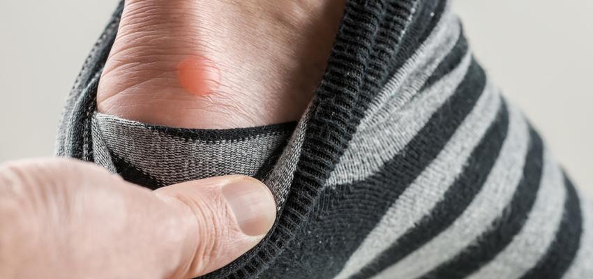 Blaren verzorgen: tips om pijnlijke voeten te verhelpen